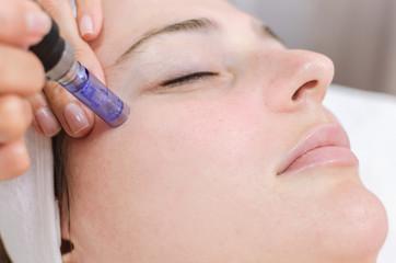dermopen face treatment