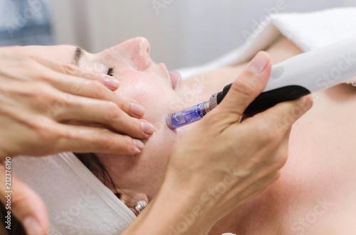 dermapen spa treatment
