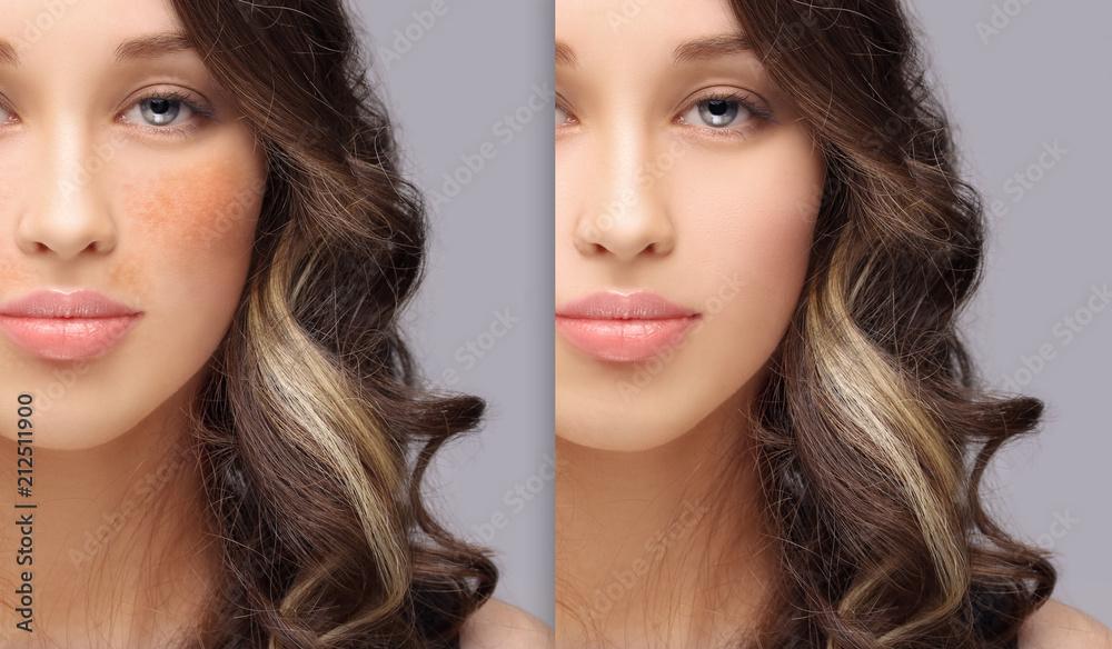 Fototapety, obrazy: Dark spots, freckles,hyperpigmentation(melasma or chloasma)