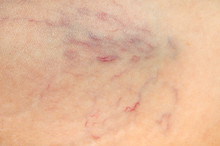 Close-up View Of Spider Veins On Female Leg