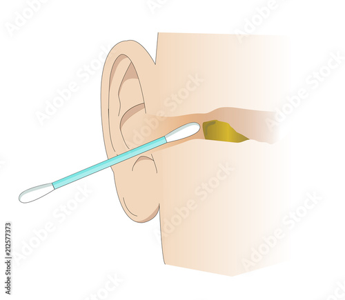 Photo Illustration of the ear canal being cleaned with a cotton swab