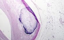 Artery Calcification, Narrowing Of Artery, Light Micrograph, Photo Under Microscope