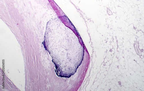 Artery calcification, narrowing of artery, light micrograph, photo under microsc Canvas Print