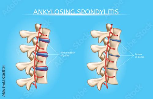 Fototapeta  Spine Joints Arthritis Symptoms Vector Infographic
