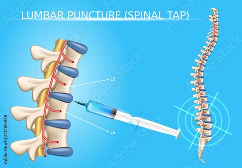 Cuadros en Lienzo Lumbar Puncture Realistic Vector Medical Scheme