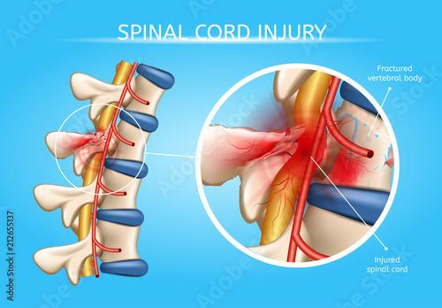 Fotografía  Human Spinal Cord Injury Anatomical Vector Scheme