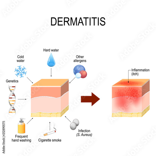 Atopic dermatitis (atopic eczema)  factors that cause