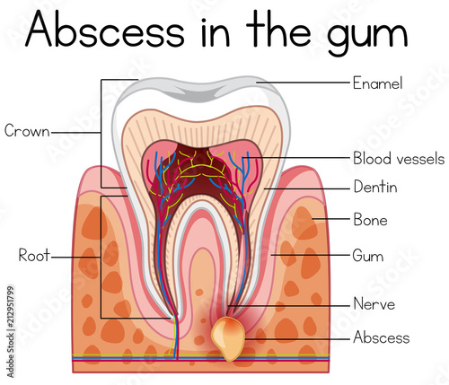 Abscess in the Gum Diagram Wallpaper Mural