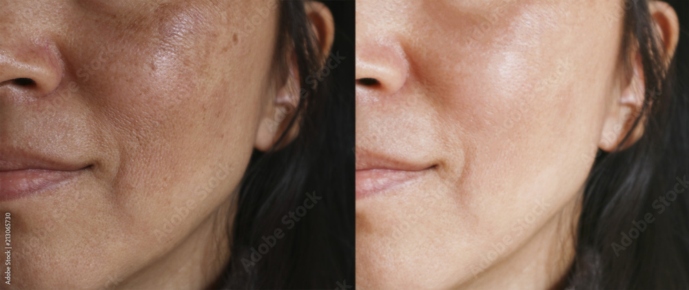 Fototapety, obrazy: Before and after facial treatment concept. Face with melasma and brown spots and open pores.