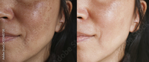 Fotografie, Obraz  Before and after facial treatment concept
