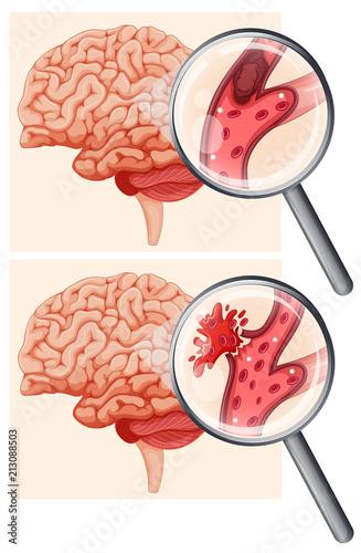 Human Brain and Hemorrhagic Stroke