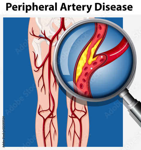 Human with Peripheral Artery Disease Canvas Print