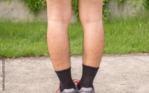 Foto Asian man leg bandy legged shape of the legs,