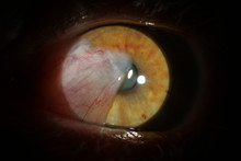 Human Eye With Cataract. Inves...
