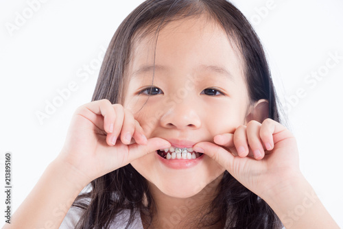 Fotografering  Young Asian girl child showing silver amalgam tooth sealant over white backgroun