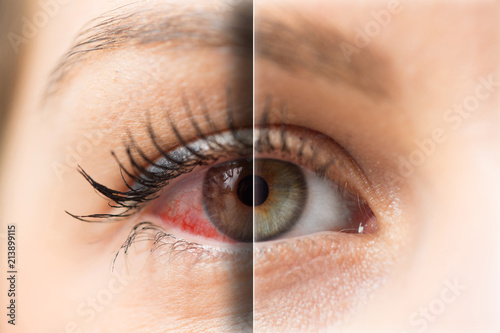 Cuadros en Lienzo Woman red eye before and after treatment