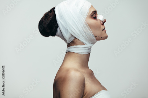Leinwand Poster Female in bandage after plastic surgery on face