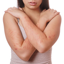 Arms With Scars And Cuts From Deliberate Self-harm