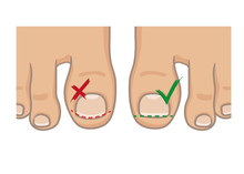How To Cut Toenails, Right And...