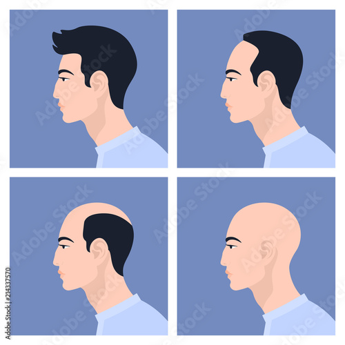 Valokuva  Stages of male pattern baldness