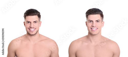 Fotomural Handsome young man before and after shaving on white background