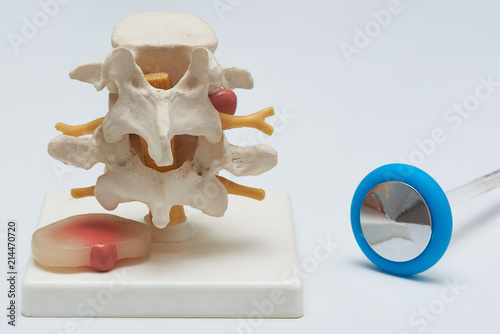 Fotografía  Herniated lumbar disc model and a reflex hammer on white background