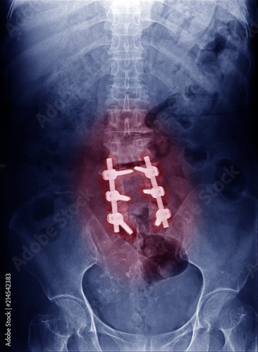 Fotografía  Xray image of patient's lumbar spine who have chronic back pain, spinal stenosis