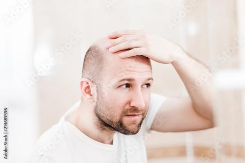 Fényképezés  Bald man looking mirror at head baldness and hair loss