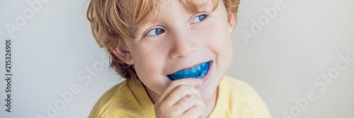 Fotografia  Three-year old boy shows myofunctional trainer to illuminate mouth breathing habit