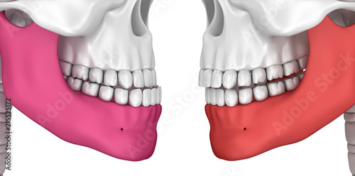 Valokuva  Occlusion: Overjet and Overbite, 3D illustration .