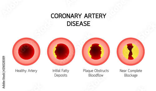 Photo Coronary Artery Disease infographic