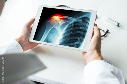 Canvas Print Doctor watching-a-x-ray of broken shoulder with pain on digital tablet