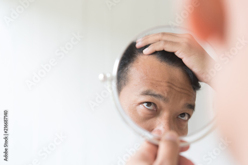 Fototapeta Men are worried about hair loss.