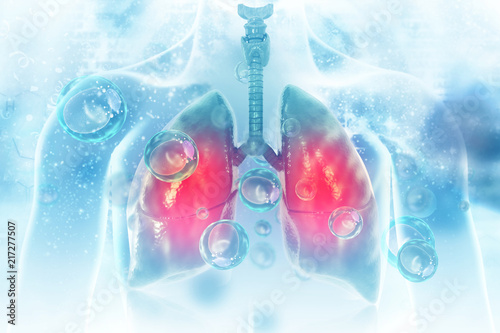 Fotografia  Virus and bacteria infected the Human lungs. lung disease