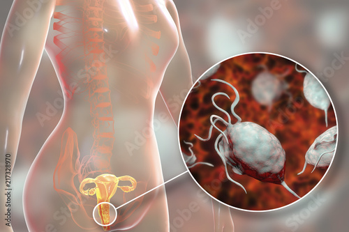 Valokuvatapetti Female trichomoniasis, 3D illustration showing vaginitis and close-up view of Tr