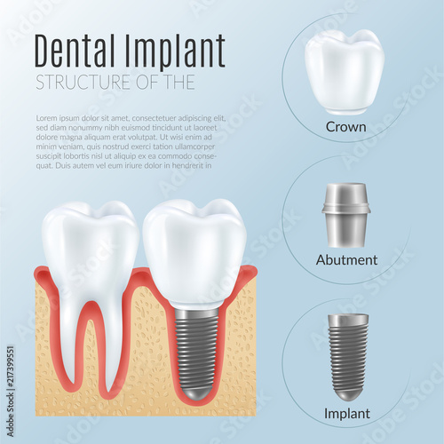 Photo Realistic Dental Implant Infographics