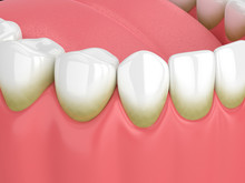 3d Render Of Teeth With Plaque And Tartar
