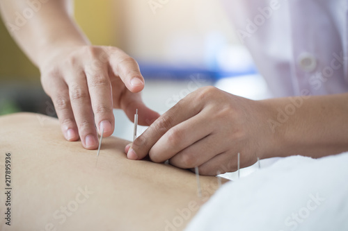 Photo Traditional Chinese Medicine Treatment - Acupuncture