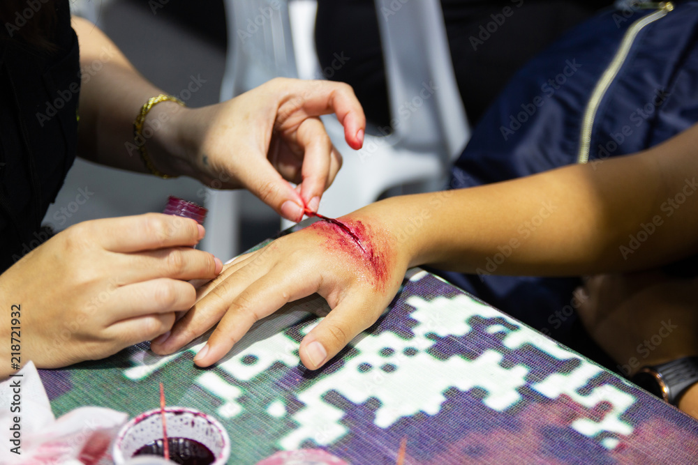 Fototapety, obrazy: The fake wound on the hand for the boy, Dress the wound special effect by professional