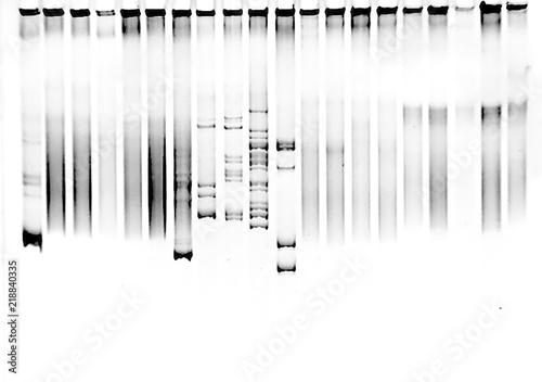 Fotografie, Obraz Mutation screening in polyacrylamide gel