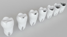 The Stages Of Caries On The Mo...