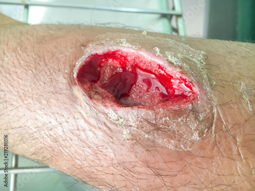 wound a left leg flows blood is red cut on skin. medical concept Fototapete