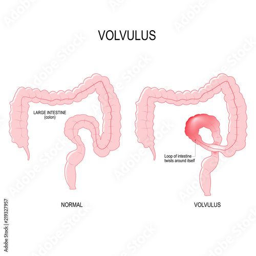 Valokuvatapetti Volvulus. loop of intestine twists around itself
