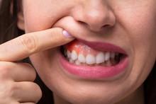 Woman Showing Swelling Of Her Gum