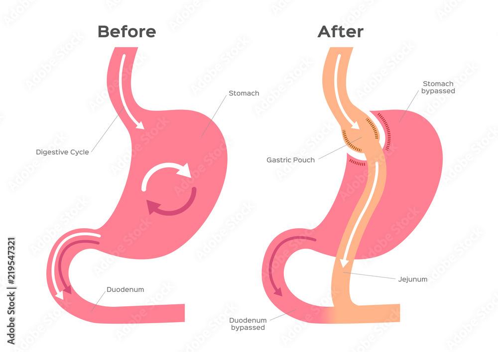 Gastric Bypass Vector Stomach Anatomy Foto Poster Wandbilder Bei