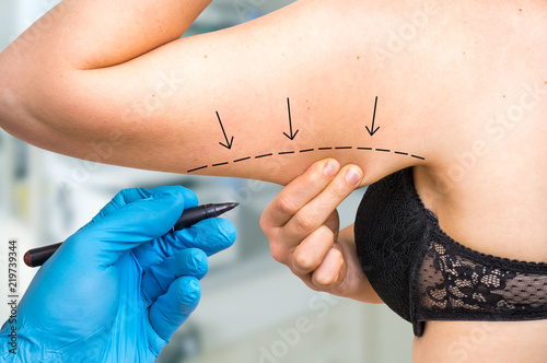 Valokuva Plastic surgery doctor draw line on patient arm