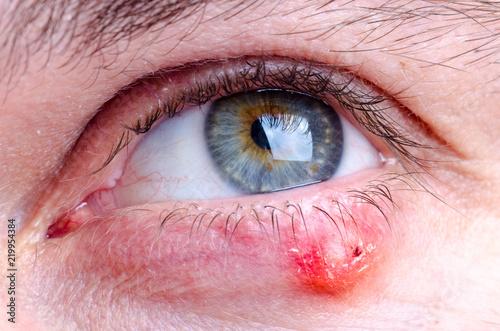 Stye (hordeolum) disease on eye of a caucasian female Wallpaper Mural