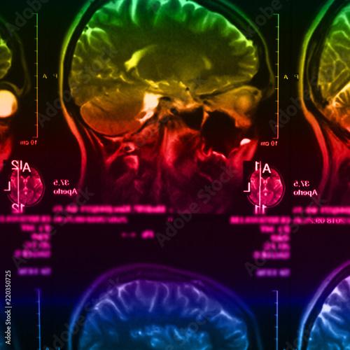 Fototapeta The X-ray of the human brain obraz na płótnie