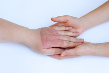 Doctor's Hands Holding Female Hand With Second Degree Burns On White Background. Doctor Examining Of The Patient. Patient Cheering And Support