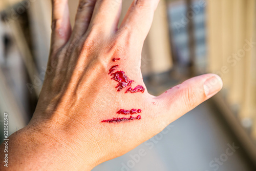 Fototapeta Focus dog bite wound and blood on hand. Infection and Rabies concept. Pet care and rabies prevention concept. Accidental and first aid concept. image for background, objects, copy space. obraz